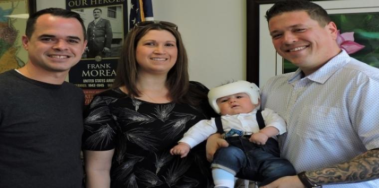 Little Boy Gets Cranial Helmet